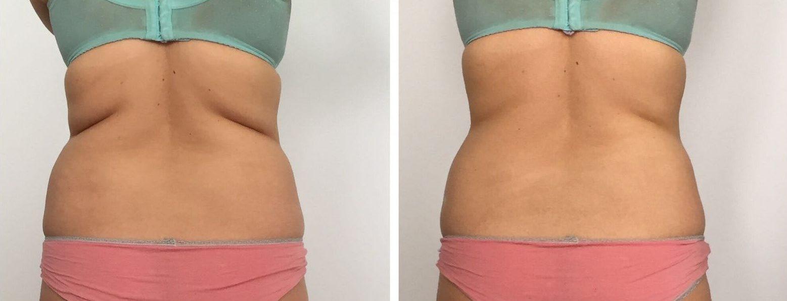fettfjerning uten kirurgi